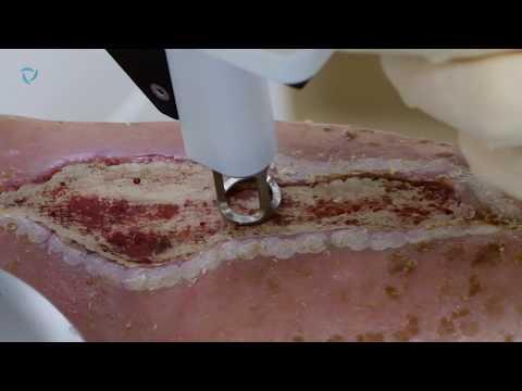 Лечение длительно незаживающих ран и трофических язв