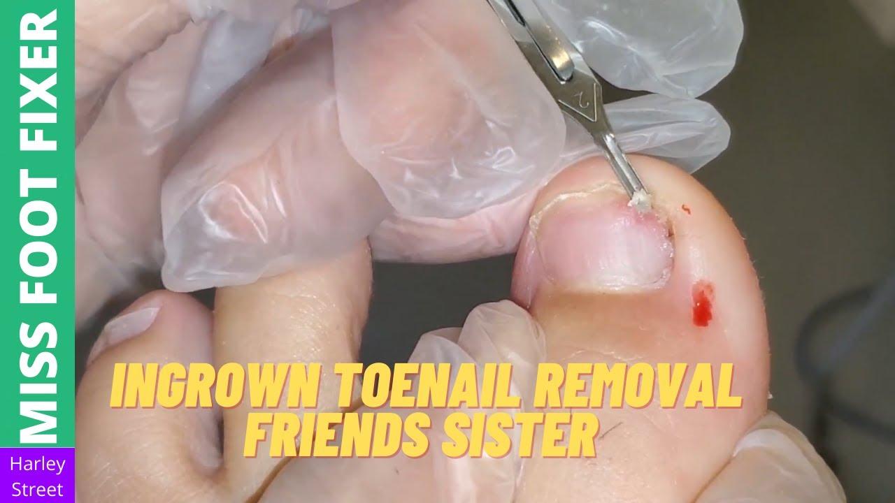 Ingrown Toenail Removal   lovely Friend sister   Miss Foot Fixer