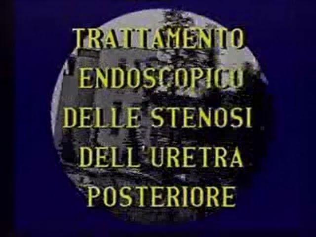 Vintage - Trattamento endoscopico delle stenosi dell'uretra posteriore