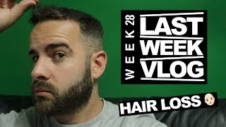last week i talk about hair loss