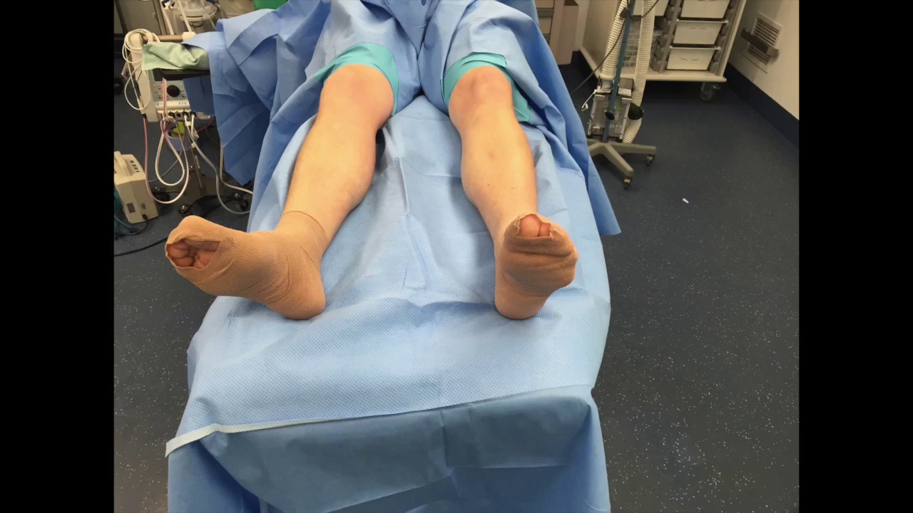 Fasciotomy for Chronic Exertional Compartment Syndrome of the Leg