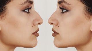горбинка на носу/комплексы/эталоны общества/мой взгляд