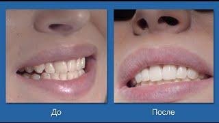 Виниры. NKDent. Chisinau, Moldova(Виниры - лучшие накладки на зубы www.munjiu.com +373 22 90 30 30 Голливудская улыбка – мечта каждого человека, которому..., 2015-10-22T19:11:39.000Z)