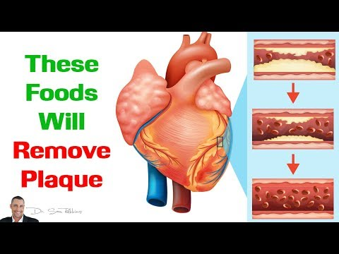 💓 These Foods Will Remove Plaque From Your Arteries