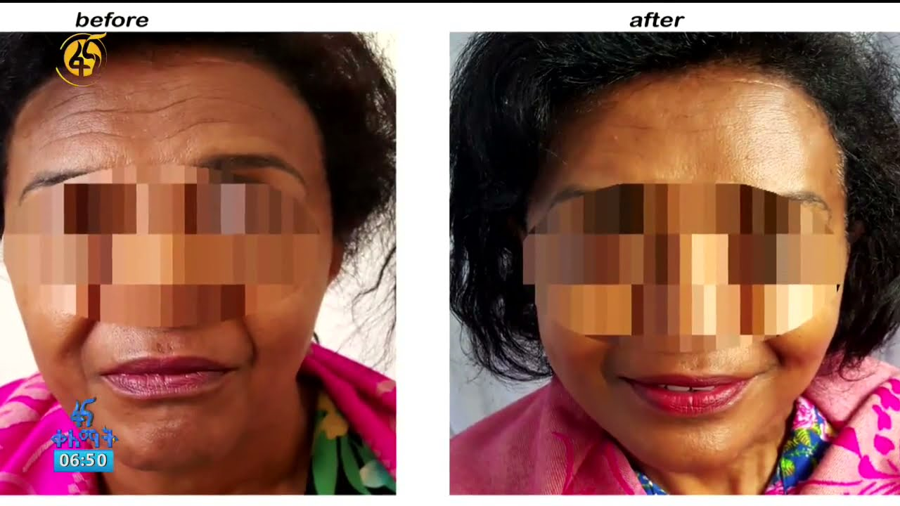 Plastic Surgery In Ethiopia