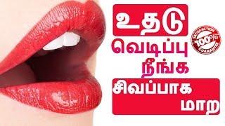உதடு வெடிப்பு நீங்க,சிகப்பாக மாற |How to get rid of black lips & Dry broken Lips ?