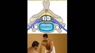 MOTOR NEURON DISEASE - AYURVEDIC KERALA PANCHAKARMA TREATMENTS - MANOHARA AYURVEDIC HOSPITAL
