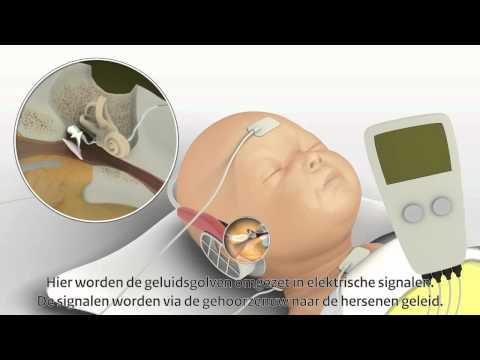Gehoorscreening bij pasgeboren baby's; derde meting, AABR. (Korte versie)