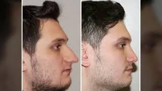 Op Dr Mustafa Ali Yanık before and after results
