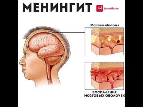 мононуклеоз вирус герпеса