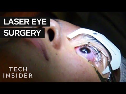 What It's Like To Get Laser Eye Surgery
