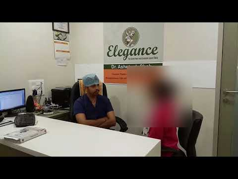 Breast Implant Surgery Review for Dr. Ashutosh Shah at Elegance Clinic in Surat
