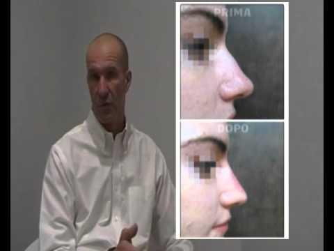 RINOPLASTICA SECONDARIA NAPOLI - SALERNO - ROMA - Chirurgia Estetica del Naso /LA CLINICA DEI NASI from YouTube · Duration:  4 minutes 16 seconds