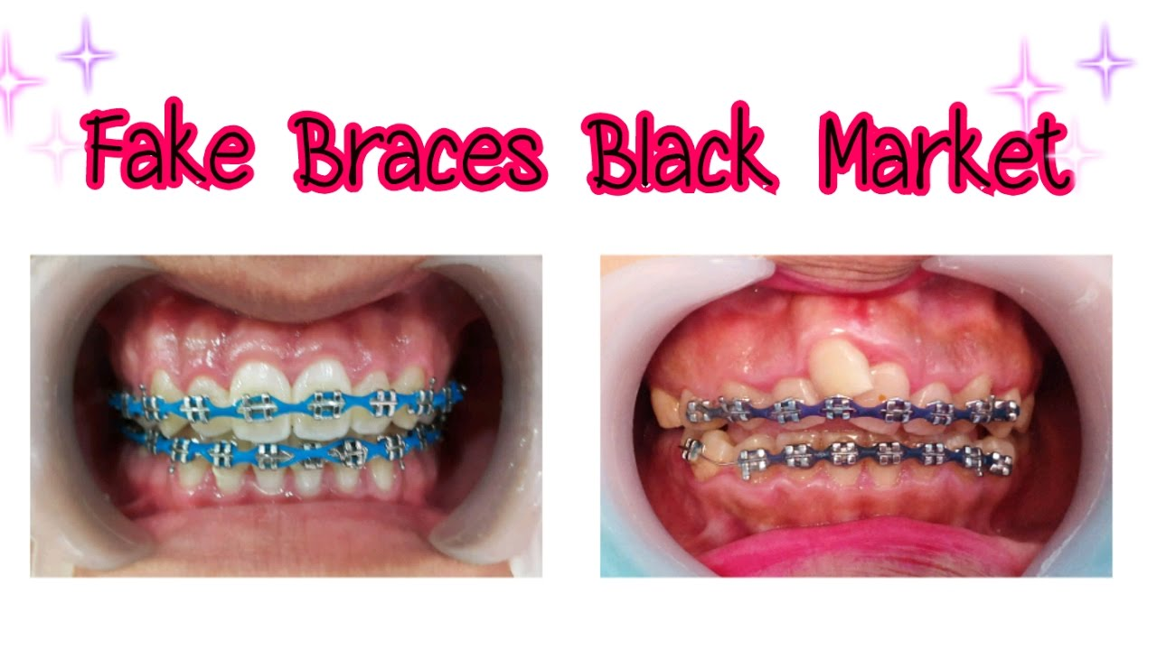 Fake braces black market youtube solutioingenieria Choice Image