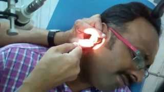 Insect (Bug) In The Ear- How to Remove? Dr Paulose FRCS (ENT)