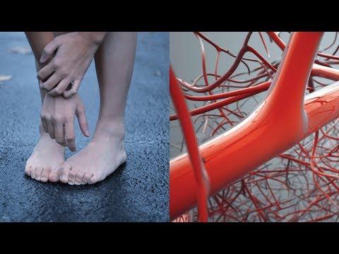 Холодеют ноги болит сердце