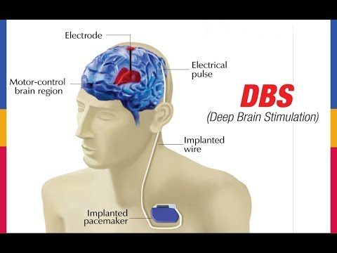 DBS (Deep Brain Stimulation)