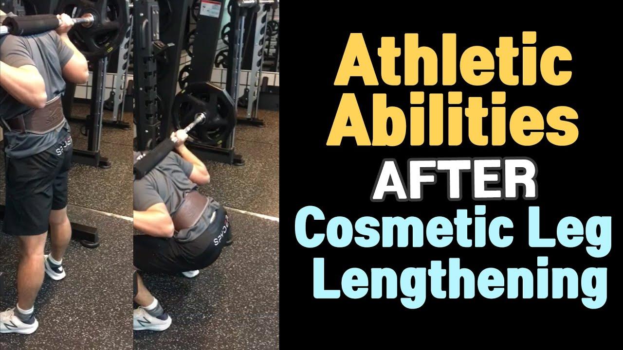 Surgery reddit lengthening leg Limb Lengthening