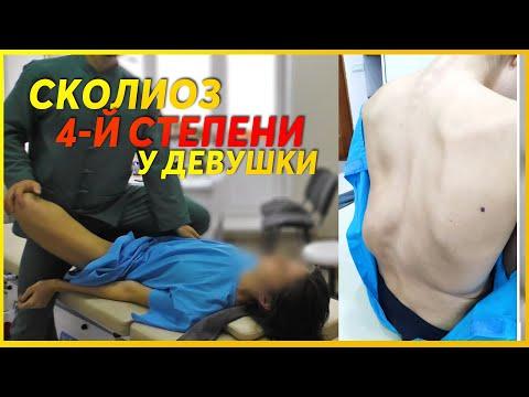 СКОЛИОЗ 4-Й СТЕПЕНИ у МОЛОДОЙ девушки исправил костоправ