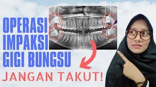 Masalah yang timbul akibat gigi bungsu dapat menyebabkan keluhan yang sering kali tidak kita sadari..