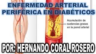 Sanguínea diabetes periférica circulación
