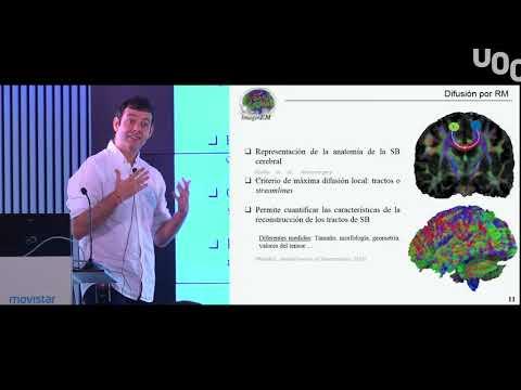Descifrar la red cerebral: el gran desafío de la neurociencia del S.XXI. UOC Data Day 2018