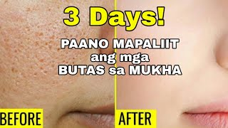 HOW TO GET RID OF LARGE OPEN PORES PERMANENTLY IN 3 DAYS