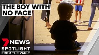 The boy with no face: the incredible story of Yahya | 7NEWS Spotlight