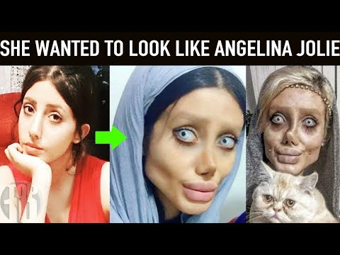 PEOPLE WHO HAD EXTREME PLASTIC SURGERIES