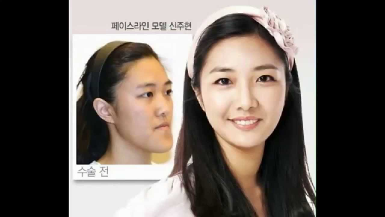 Eru korean celebrity plastic surgery