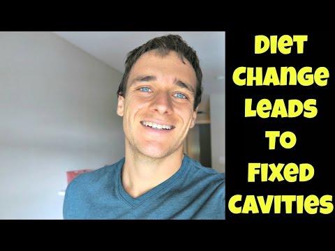 The Cavity Healing Diet