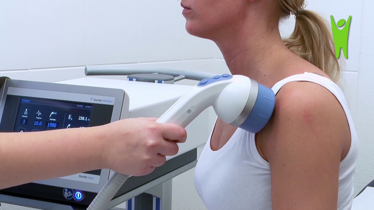 Stoßwellentherapie schulter erfahrungen