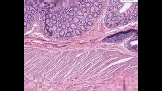 Shotgun Histology Recto-Anal Junction