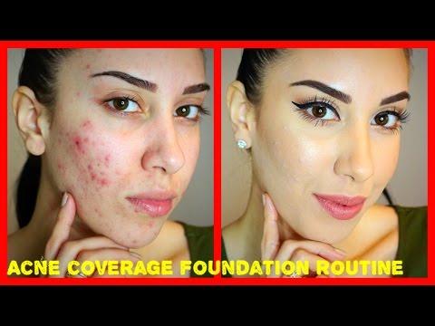 Acne Coverage Foundation Routine (PRE-ACCUTANE) Drugstore Products!!!