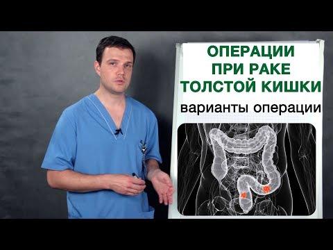 Как оперируется опухоль (рак) толстой кишки. Операции при раке толстой кишки