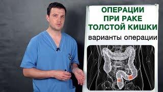 Рак толстой кишки - как оперируется рак толстой кишки. Операции при раке толстой кишки