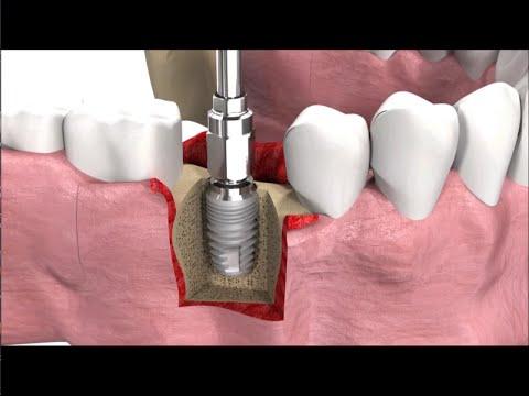 Имплантация зубов: виды, техника операции и цены - Cмотреть видео онлайн с youtube, скачать бесплатно с ютуба