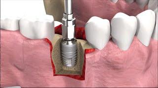 Имплантация зубов: виды, техника операции и цены(, 2016-01-09T13:08:15.000Z)