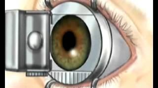 Lazerle Gözlükten Kurtulma Tedavisinde En Güvenilir Yöntem Hangisidir?