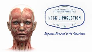 Necklifting 101: Plastic Surgery Techniques for the Neck