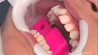 Diş telleri nasıl takılıyor? SarıyerOrtodonti DijitalOrtodonti