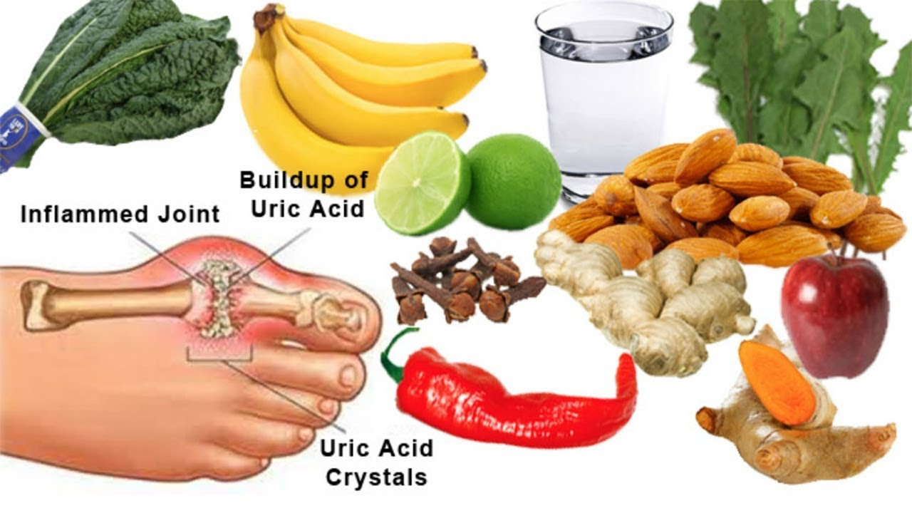Gout Treatment at Home 85