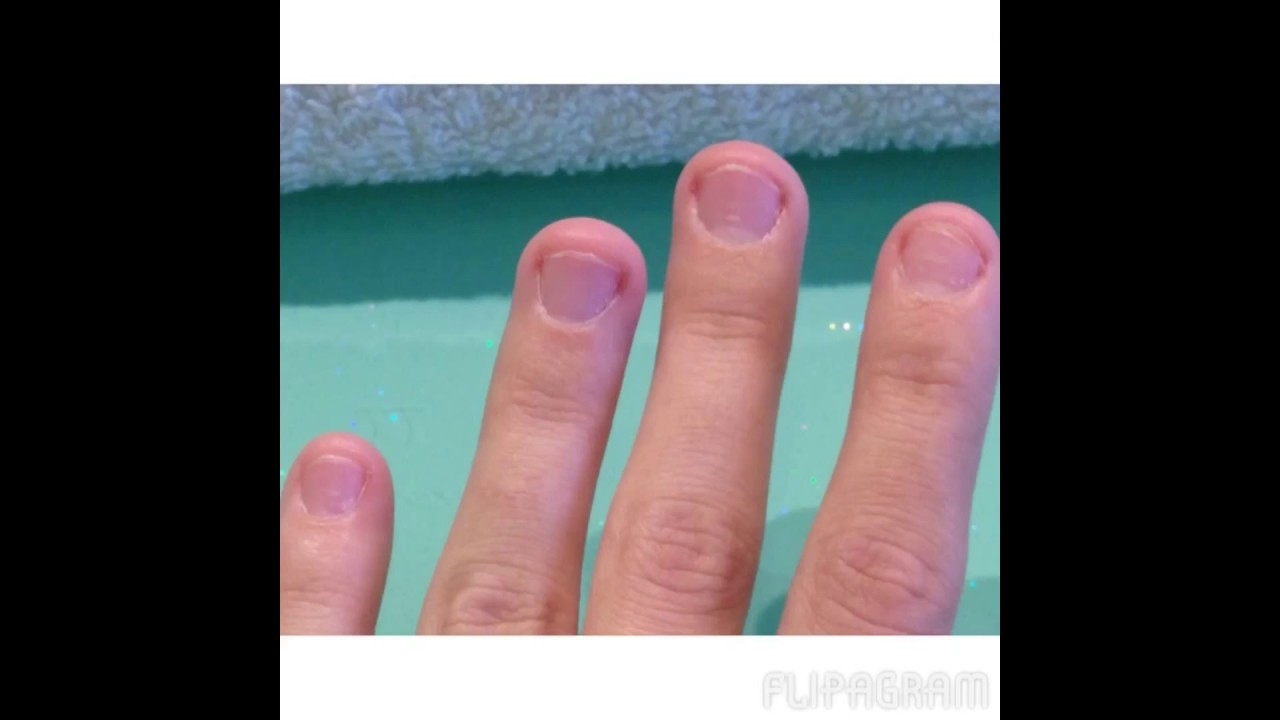 My nail biting journey (before & after pics) 2 - YouTube