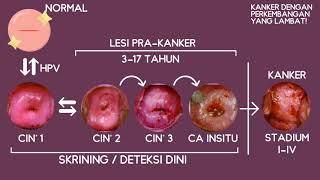 Kanker serviks menduduki peringkat no. 4 di dunia, dan no. 2 di Indonesia. Apa sebenarnya kanker ser.