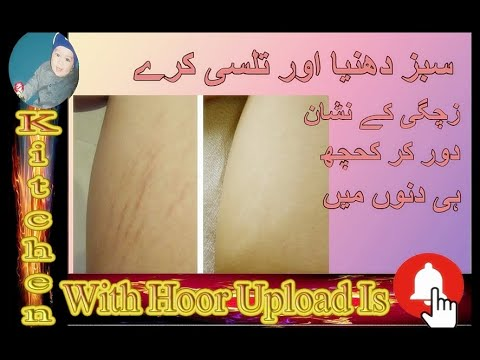Pregnancy Stretch Marks  How To Remove Stretch Mark Home Remedy Natural  Ingredients