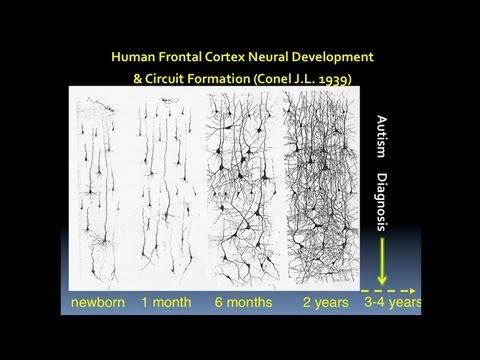CARTA: Human Origins: Lessons from Autism Spectrum Disorders - Karen Pierce