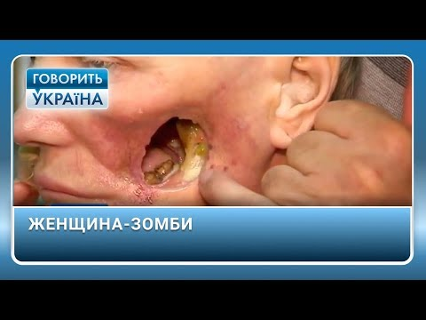 Женщина-зомби (полный выпуск) | Говорить Україна