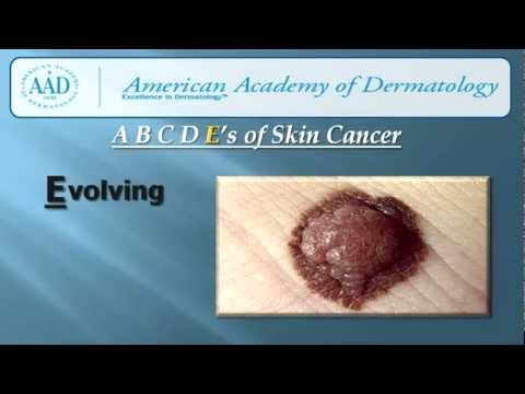 ABCDEs of Skin Cancer Detection | All-County Dermatology