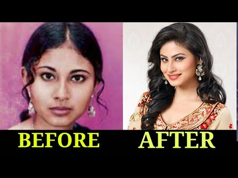 10 Plastic Surgery Of Popular TV Actresses BEFORE & AFTER 2018