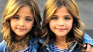 5 ungewöhnliche und bildschöne Kinder auf der Welt!